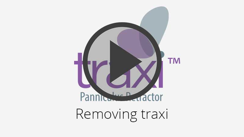 Removing traxi Panniculus Retractor